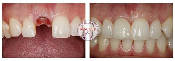 cấy ghép implant cho răng hàm như thế nào