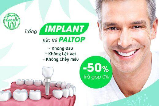 Cắm Implant tức thì không đau, không chảy máu – Giảm 50% + Trả góp 0% Implant Paltop (Mỹ)