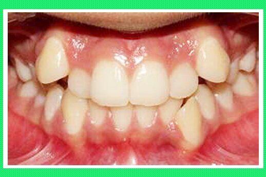 Phương pháp khắc phục răng mọc khấp khểnh tốt nhất