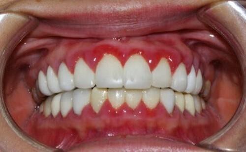 Top các bệnh răng miệng nguy hiểm với người già