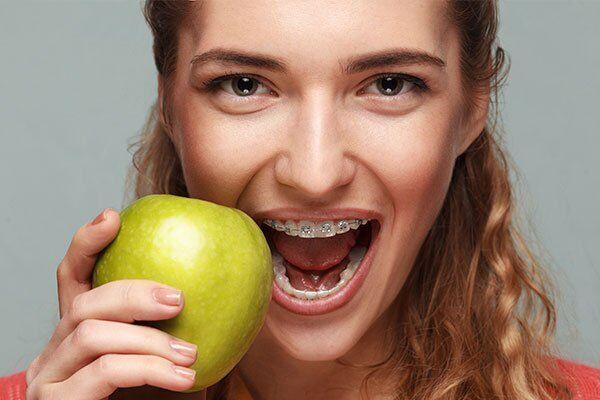 không nên ăn gì khi niềng răng