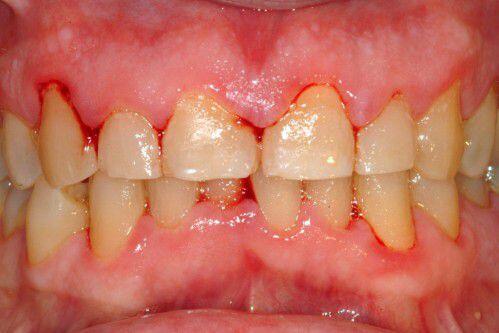 Chảy máu khi đánh răng là bệnh gì ?