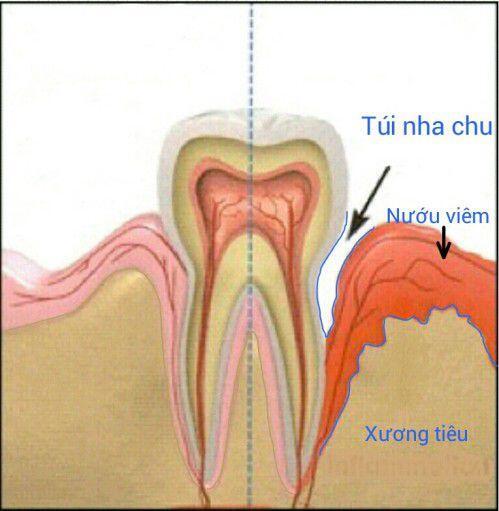 Những triệu chứng thường gặp của bệnh áp xe nha chu