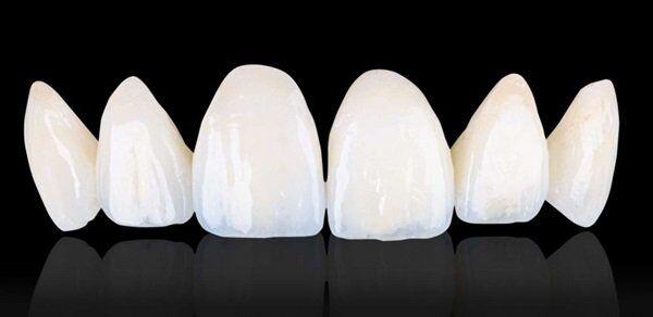 Bọc răng sứ Cercon giá bao nhiêu tiền?