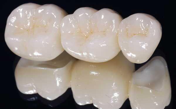 Bọc răng sứ Cercon HT giá rẻ nhất bao nhiêu tiền?