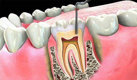 Những dấu hiệu răng miệng cần điều trị tủy răng