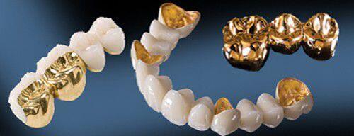 Bọc răng sứ kim loại có những lợi ích gì?