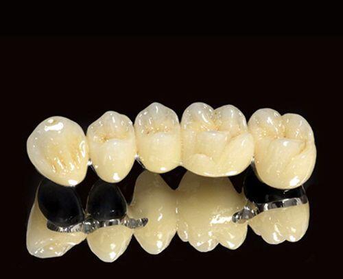 Bọc Răng Sứ Titan Thẩm Mỹ Chuẩn Quốc Tế