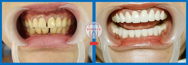 Bọc răng sứ có tốt không ?