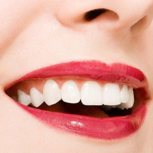 Niềng răng tại Bà Rịa chỗ nào tốt và uy tín ?