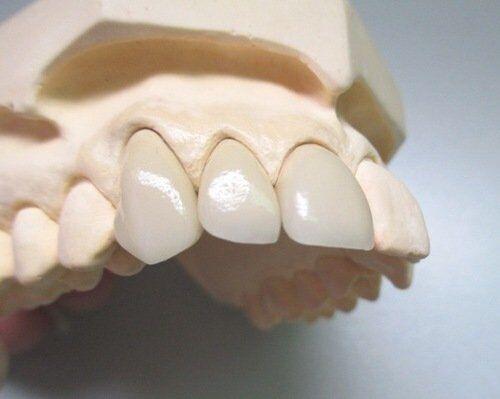 Bọc răng sứ Titan có khó chịu không ?