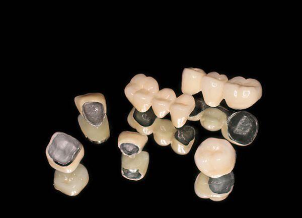 Bọc răng sứ Titan giá bao nhiêu tiền ?