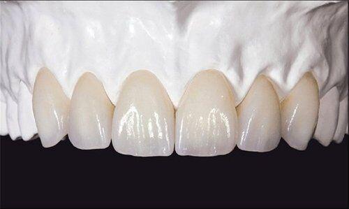 Bọc răng sứ Zirconia ở đâu đẹp tại thành phố Hồ Chí Minh ?