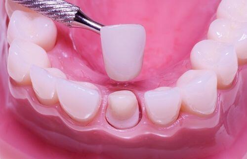 bọc sứ cho răng
