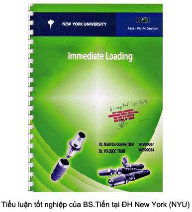 Các bước bảo dưỡng implant nha khoa
