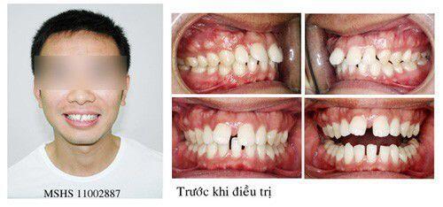 Phương pháp điều trị tình trạng răng mọc chen lấn nhau