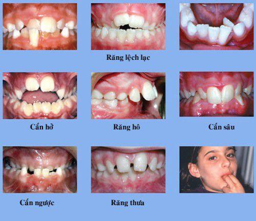 Các dạng răng vẩu thường gặp