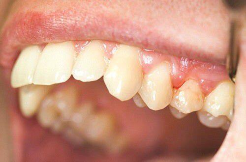 Nguyên nhân gây ra tình trạng chảy máu chân răng