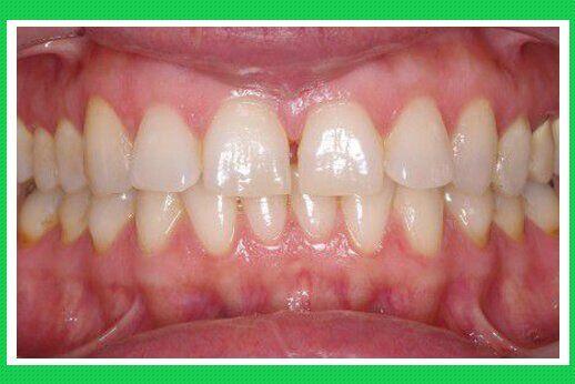 Các loại nhiễm màu răng trong quá trình phát triển