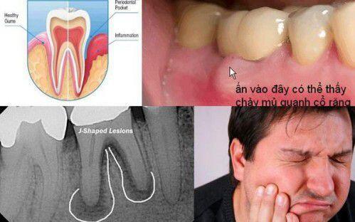 Khi nào trám răng không cần lấy tủy ?