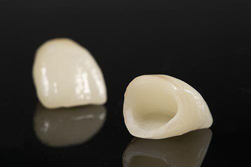 Cách chăm sóc răng sứ Zirconia để tăng tuổi thọ răng sứ