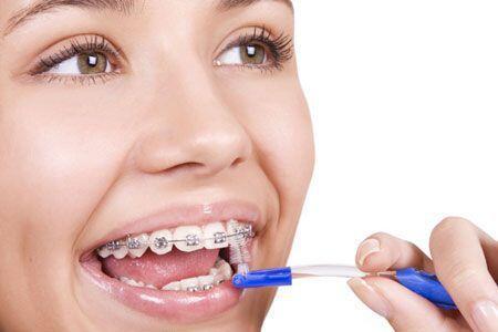 Cách vệ sinh răng miệng khi đang niềng răng