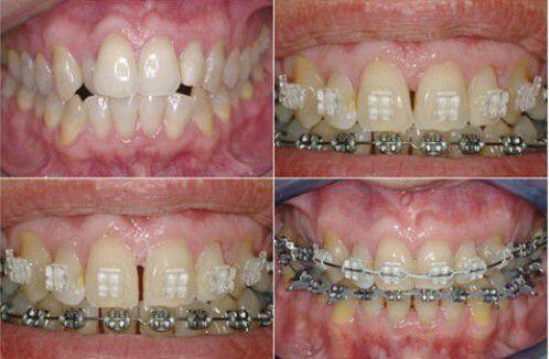 Cách để răng hết thưa vĩnh viễn