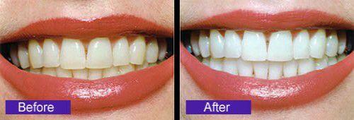 Cách làm trắng răng nhanh nhất