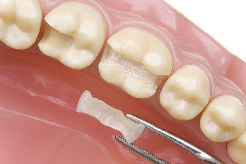 cách phòng ngừa răng bị mòn mặt nhai