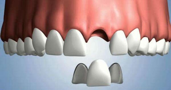 Cắm implant răng cửa như thế nào ?