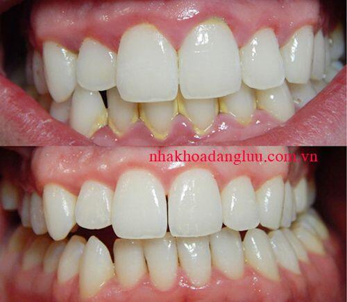 Cách tẩy mảng bám trên răng hiệu quả