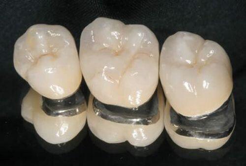 Lợi ích từ việc làm răng sứ thẩm mỹ