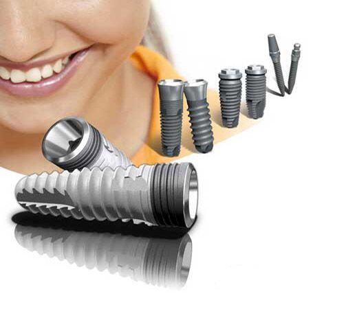 Cấy ghép răng Implant ở đâu tốt nhất ?