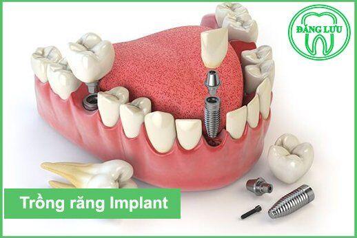 Tỷ lệ thành công khi cấy ghép Implant