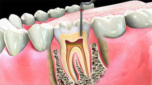 Các giai đoạn phát triển của bệnh viêm tủy răng