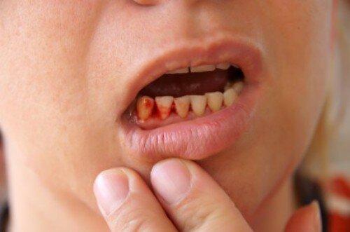 Chảy máu chân răng là dấu hiệu của bệnh gì ?
