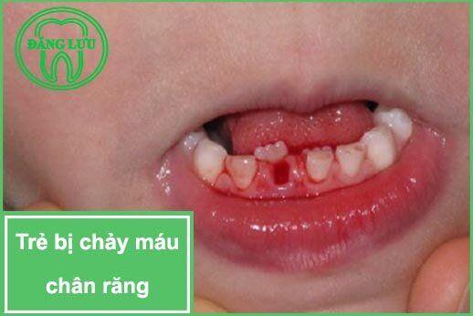 Chảy máu chân răng ở trẻ em có nguy hiểm không ?