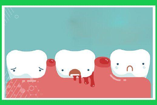 Chảy máu chân răng nên uống thuốc gì?