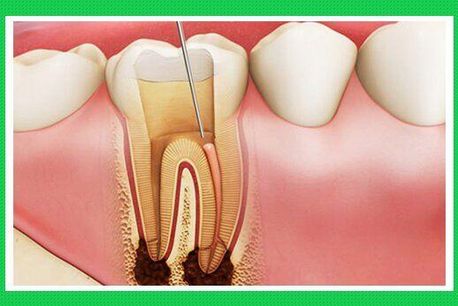 Thời gian tồn tại của răng đã chữa tủy và biện pháp kéo dài tuổi thọ