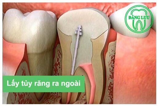 điều trị tủy khi chân răng bị cong