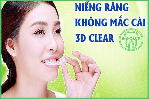 Clear 3D niềng răng