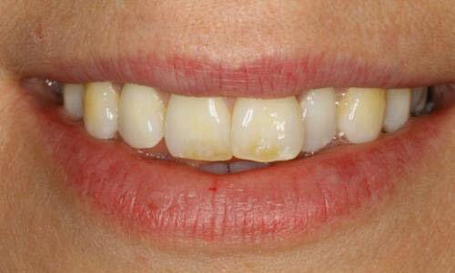 Có cách điều trị triệt để bệnh thiếu sản men răng không ?