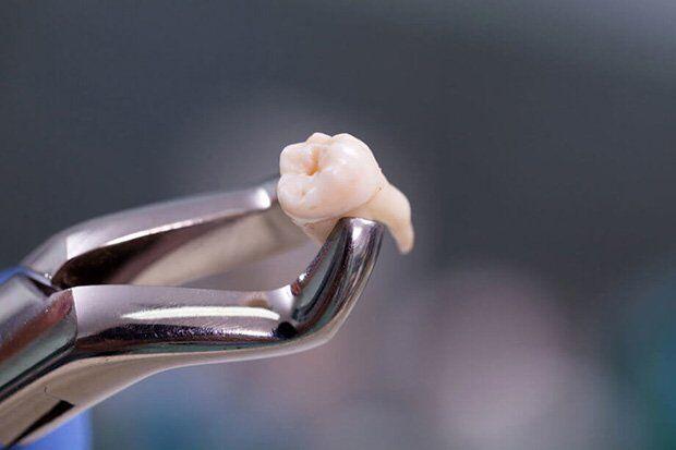 có nên nhổ răng khôn không