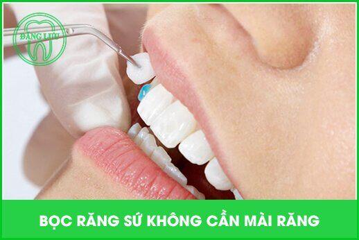 bọc răng sứ không cần mài răng