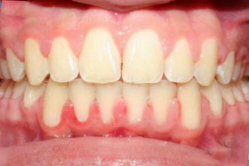 4 dấu hiệu răng miệng cảnh báo bệnh nguy hiểm