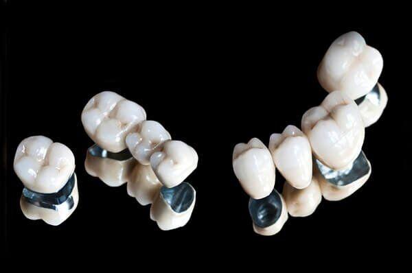 Địa chỉ bọc răng sứ Titan tốt quận 5