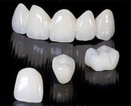 Phương pháp làm trắng hàm răng ố vàng