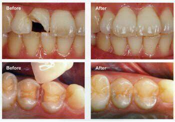 điều cần biết khi trám răng