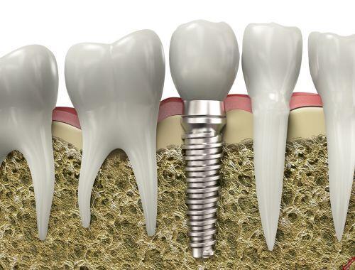 Liên kết cắm ghép Implant California tại Mỹ