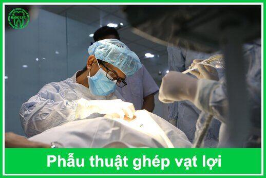 phẫu thuật ghép lợi